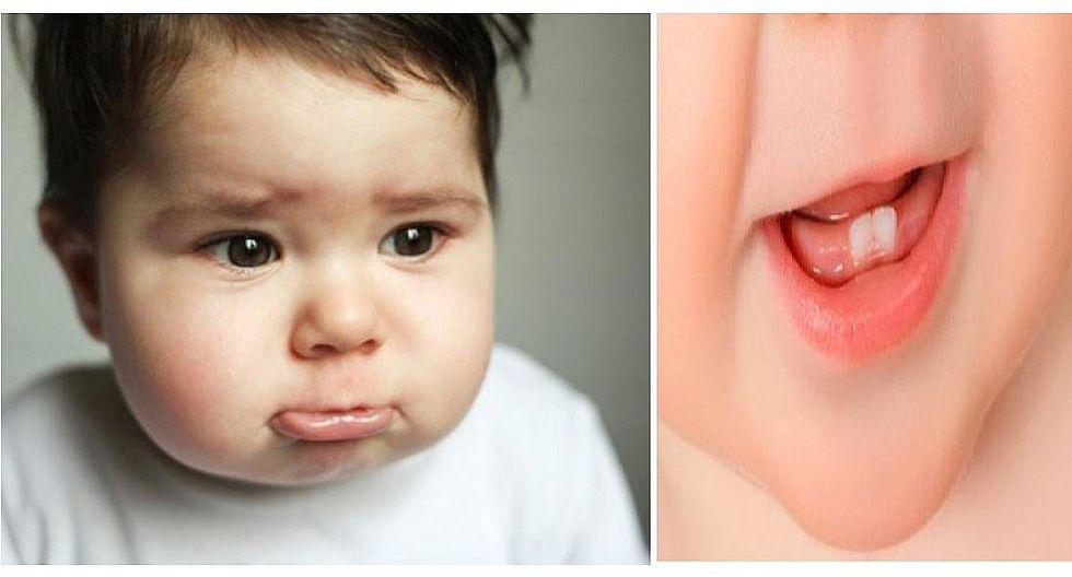 ¿Cómo aliviar el dolor de encías de tu bebé cuando le comienza a salir un diente? (FOTOS)