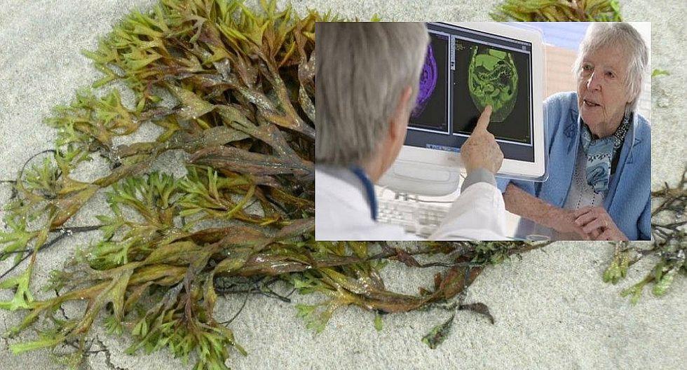 China aprueba medicamento contra el Alzheimer compuesto por algas marinas